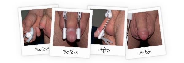 Pro Extender - Alat Pembesar Penis Modern